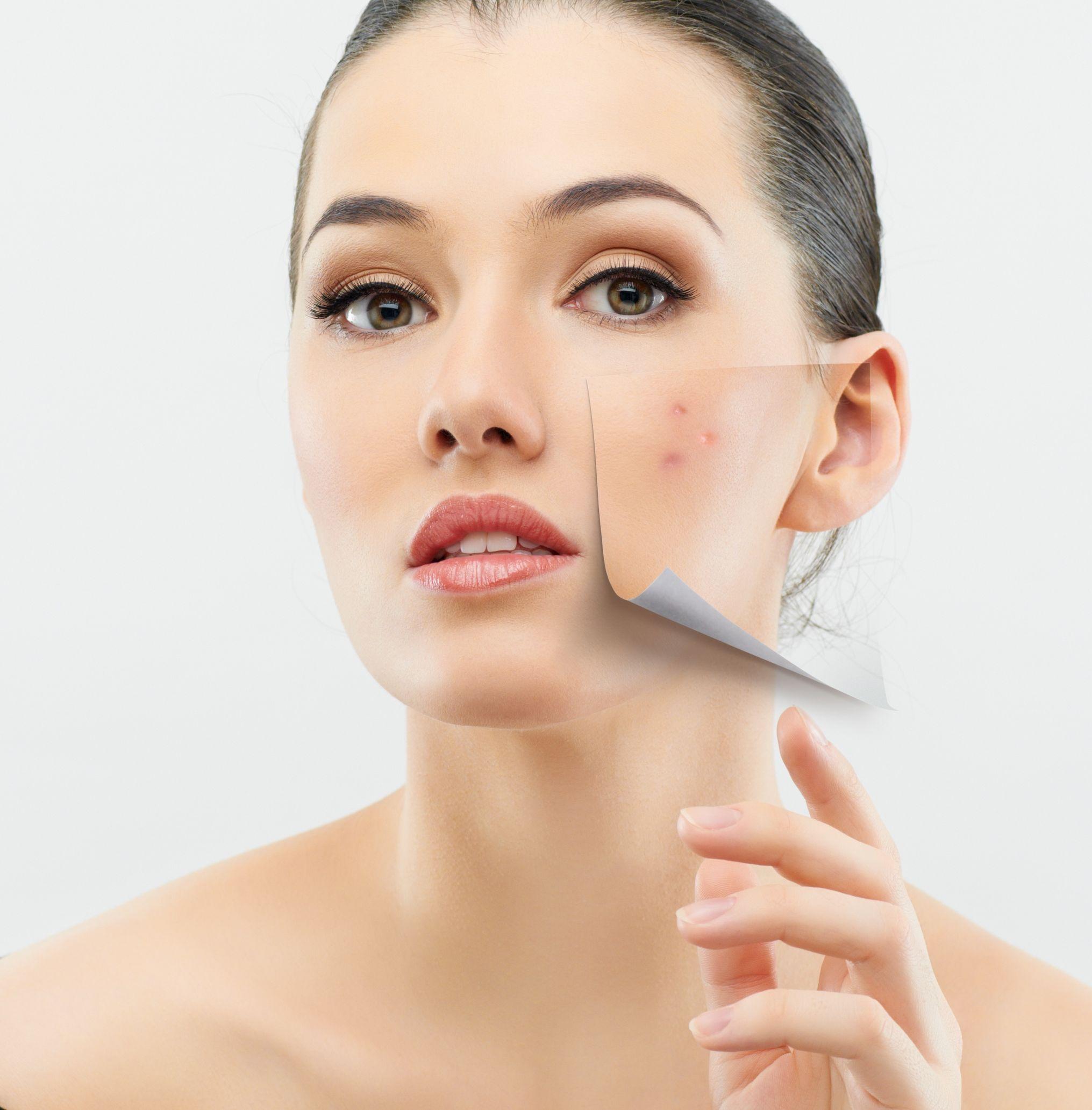 Wrinkle Creams & Ageing Skin